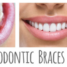 Which Type of Orthodontic Braces Are Right for You?