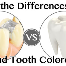 What are the Differences Between Metal and Tooth Colored Fillings Michigan City?