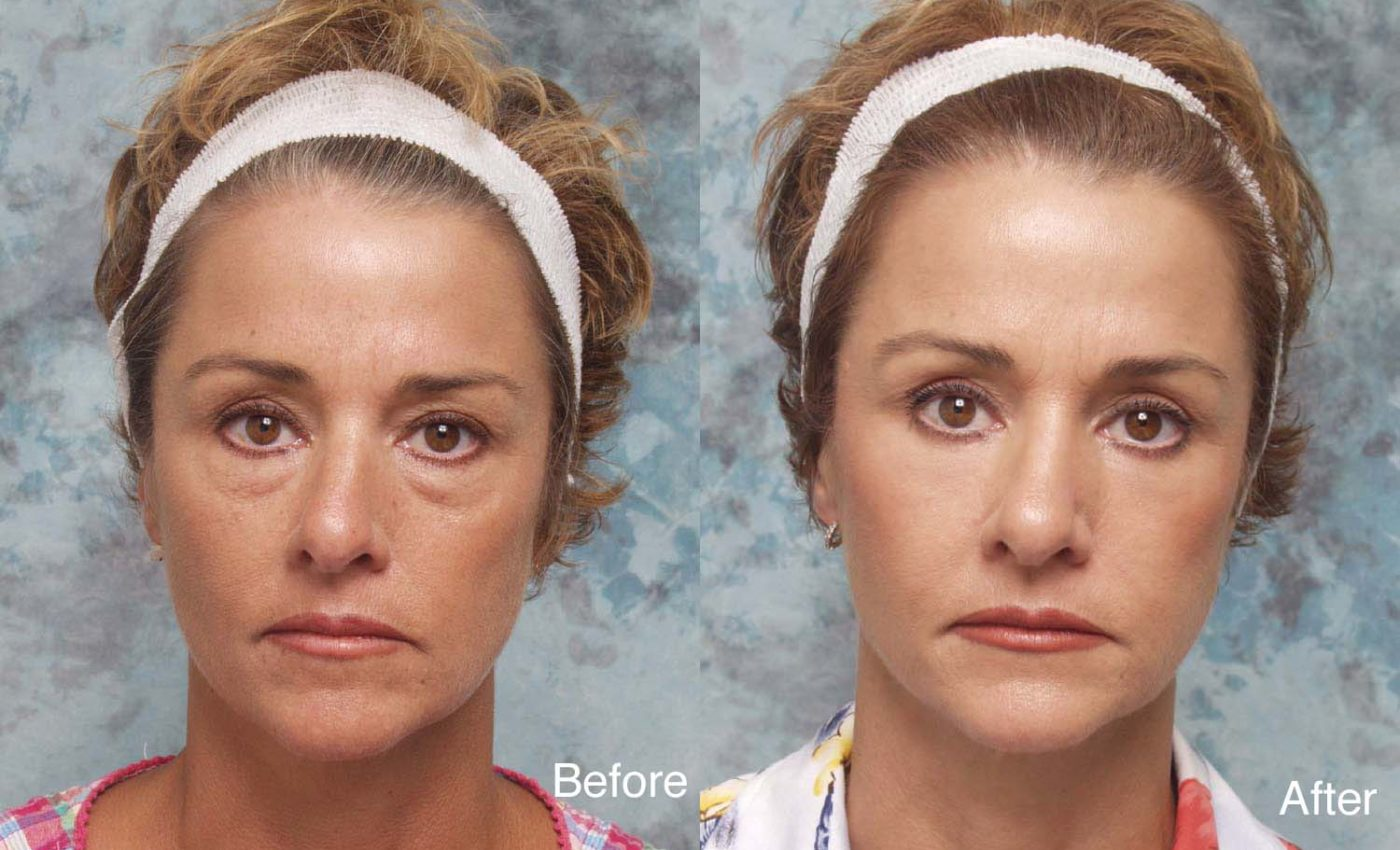 Eyelid Surgery | American Society of Plastic Surgeons
