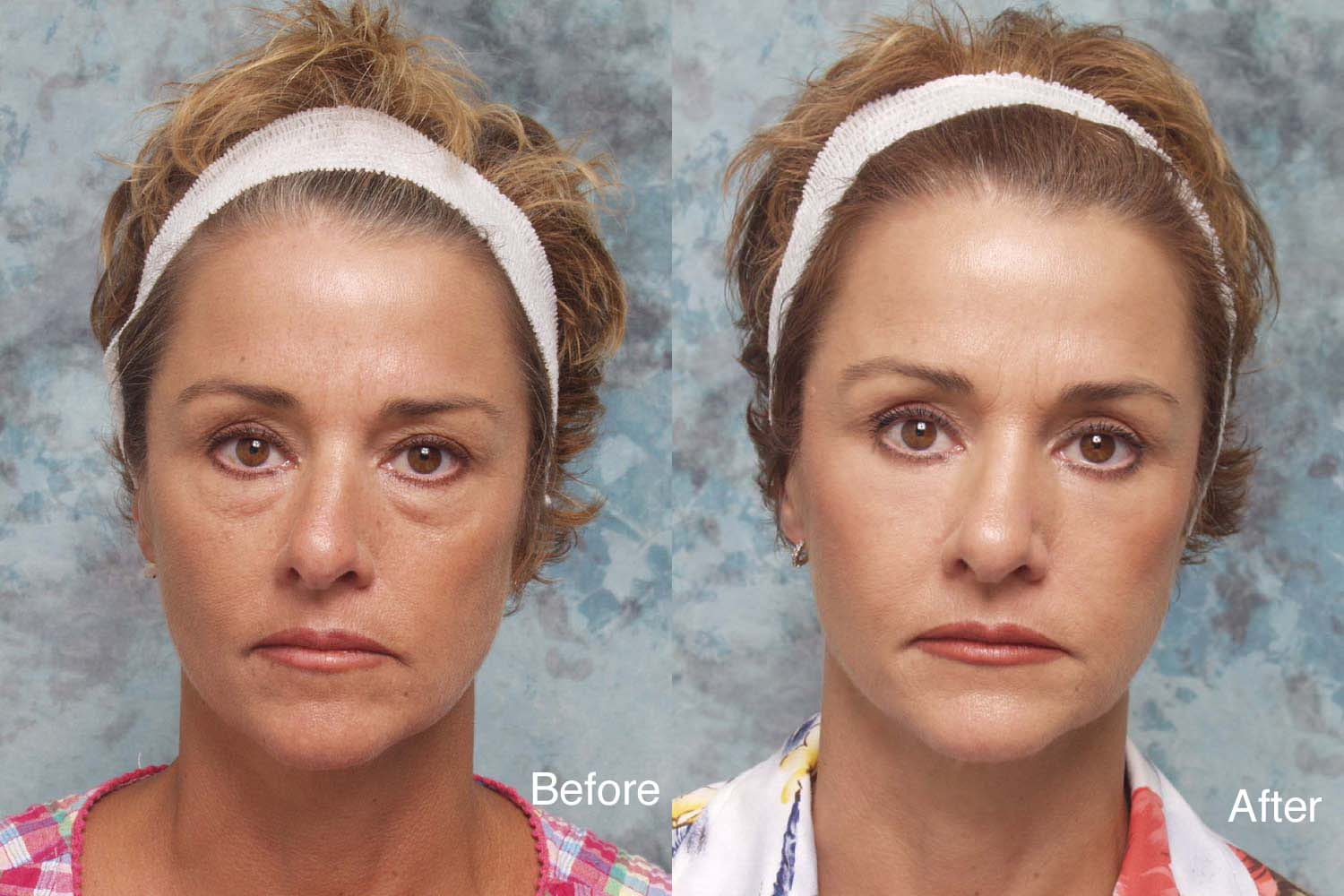 Blepharoplasty Surgery | New Jersey | Eyelid Surgery |Lower Blepharoplasty Recovery Photos