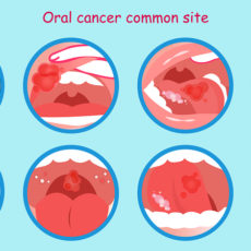 3 Steps for Oral Cancer Screening